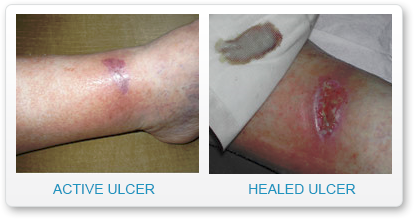 active-healed-ulcer