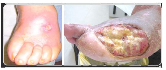 diabetic-foot-ulcer-04